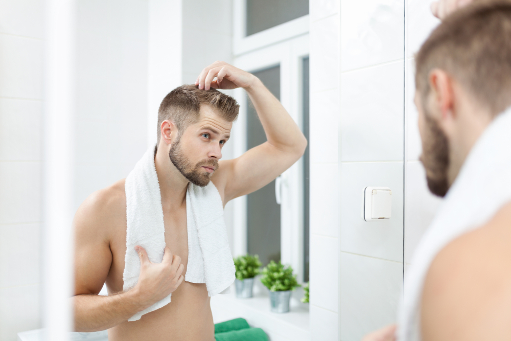 Astuces naturelles pour traiter la calvitie sans chirurgie